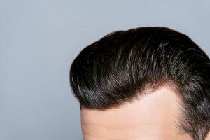 השיער שלכם מזדקן מהר