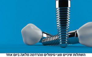 מה זה השתלות שיניים מה חשוב לדעת
